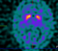 Figuur3_Parkinson.png