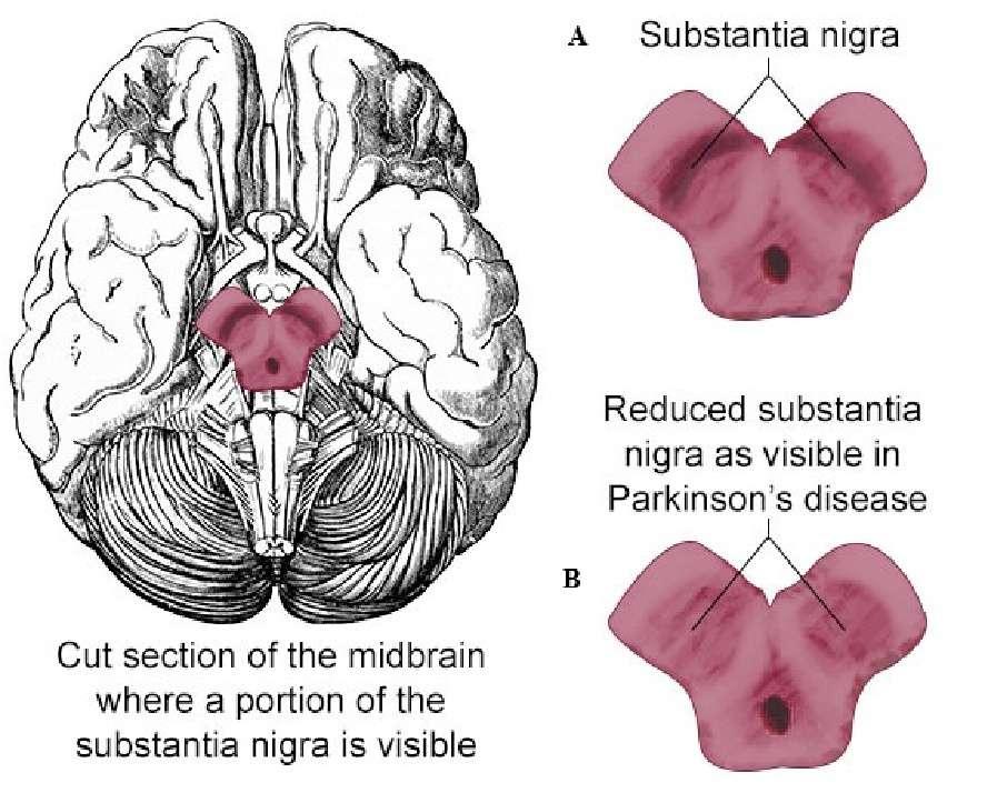 Parkinson_Figuur1.jpg